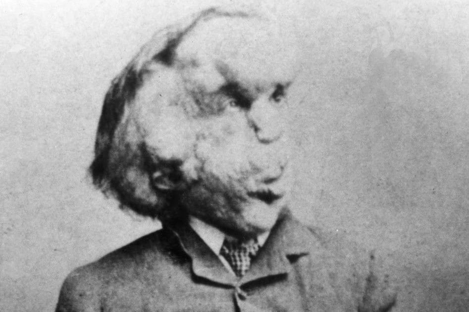 history of london elephant man