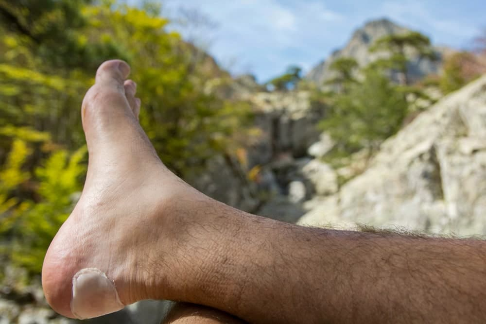 Man's foot with blister plaster on